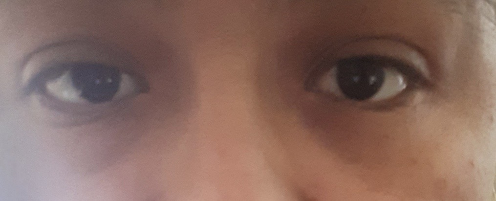 After cosmetic pterygium  procedure
