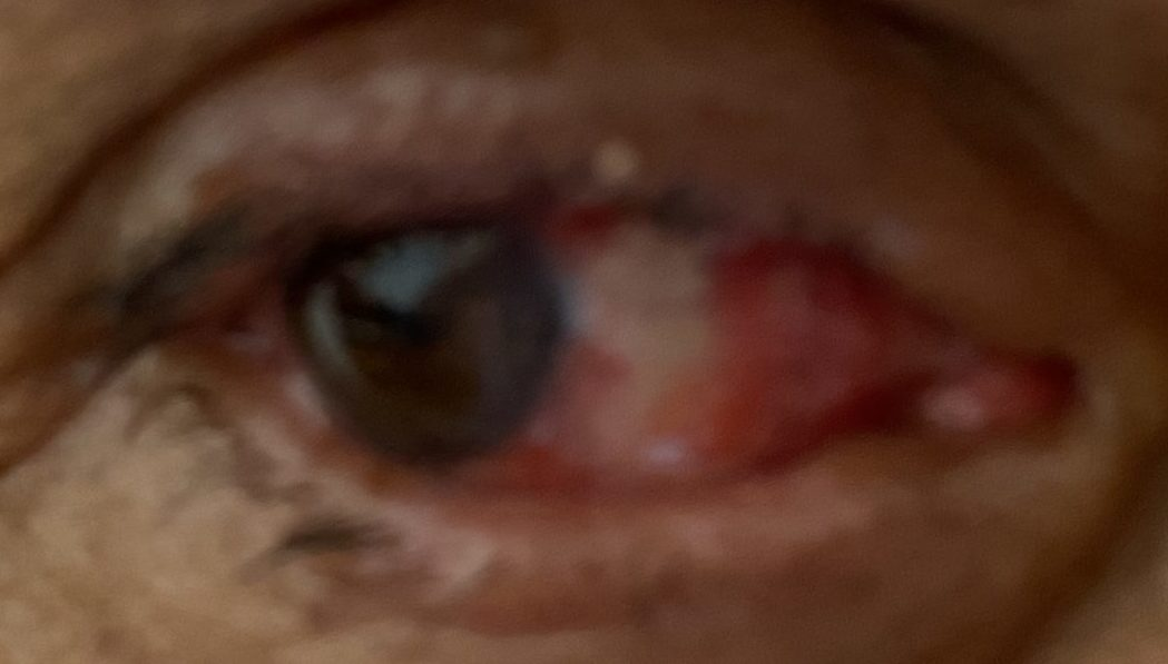 (After) Day 1 cosmetic pterygium procedure